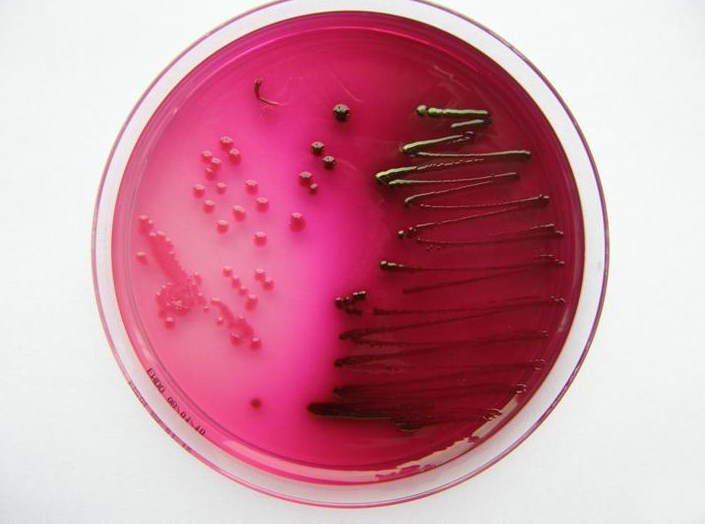 Escherichia coli, a bacterial strain used in this study. / Image credit: Wikimedia Commons/LenkaM