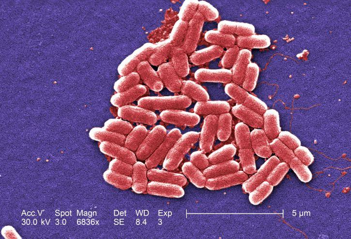 E. coli bacteria / Image credit: Pixnio