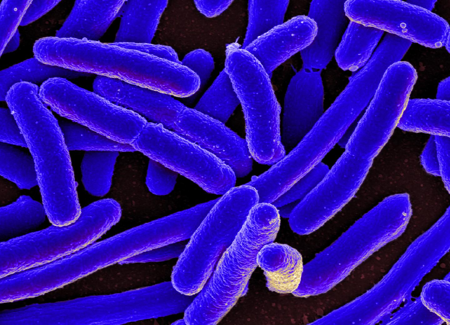 E. coli bacteria was used to study the sequences in DNA where the risk for mutation is significantly elevated. / Credit: National Institute of Allergy and Infectious Diseases