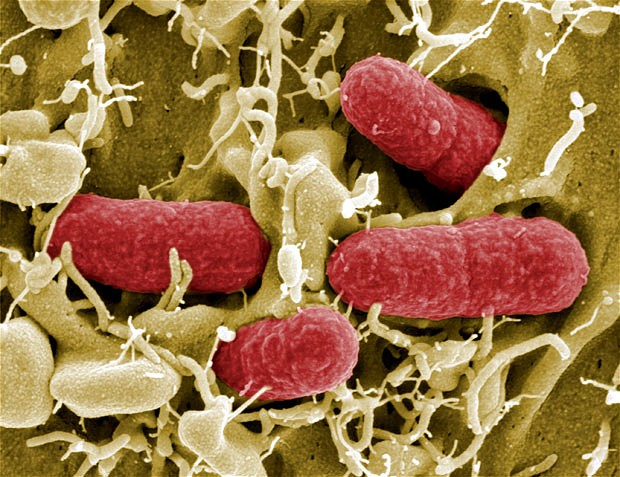 Electron microscopy image of E.coli