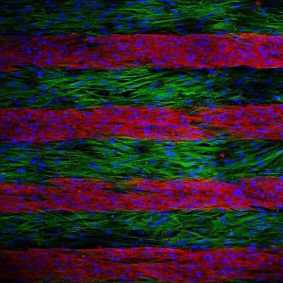 Parallel lines of cultured cells are stained to indicate if they are electrically conductive or not. Electrical signals trying to cross the culture is slowed by the inactive cells; after a genetic treatment, inactive cells become electrically active, speeding up the electrical signals as they move across the lines./Credit: Nenad Bursac, Duke University
