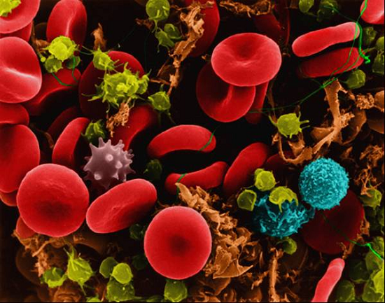 A mix of different types of cells in the body, including red blood cells, neutrophils, macrophages and mast cells.