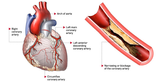 coronary heart disease thesis Short and long-term consequences of coronary heart disease page 4 this phd-thesis is based on the following scientific papers: kruse m, davidsen m, madsen m, gyrd.