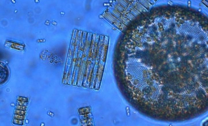 Photosynthetic plankton like these Ross Sea diatoms are key players in the global carbon cycle and form the base of marine food webs, but a new study reveals their ability to acquire iron is highly sensitive to ocean acidification. / Credit: Jeff McQuaid