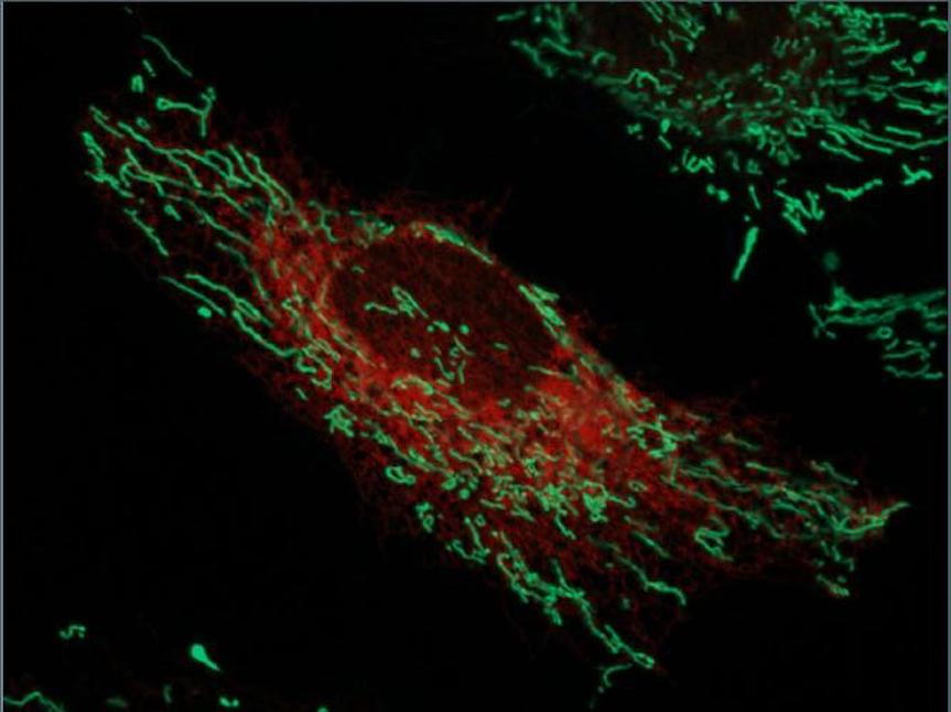 Live-imaged HeLa cells with the endoplasmic reticulum labeled red and mitochondria labeled green. / Credit: Image by Ginam Cho.