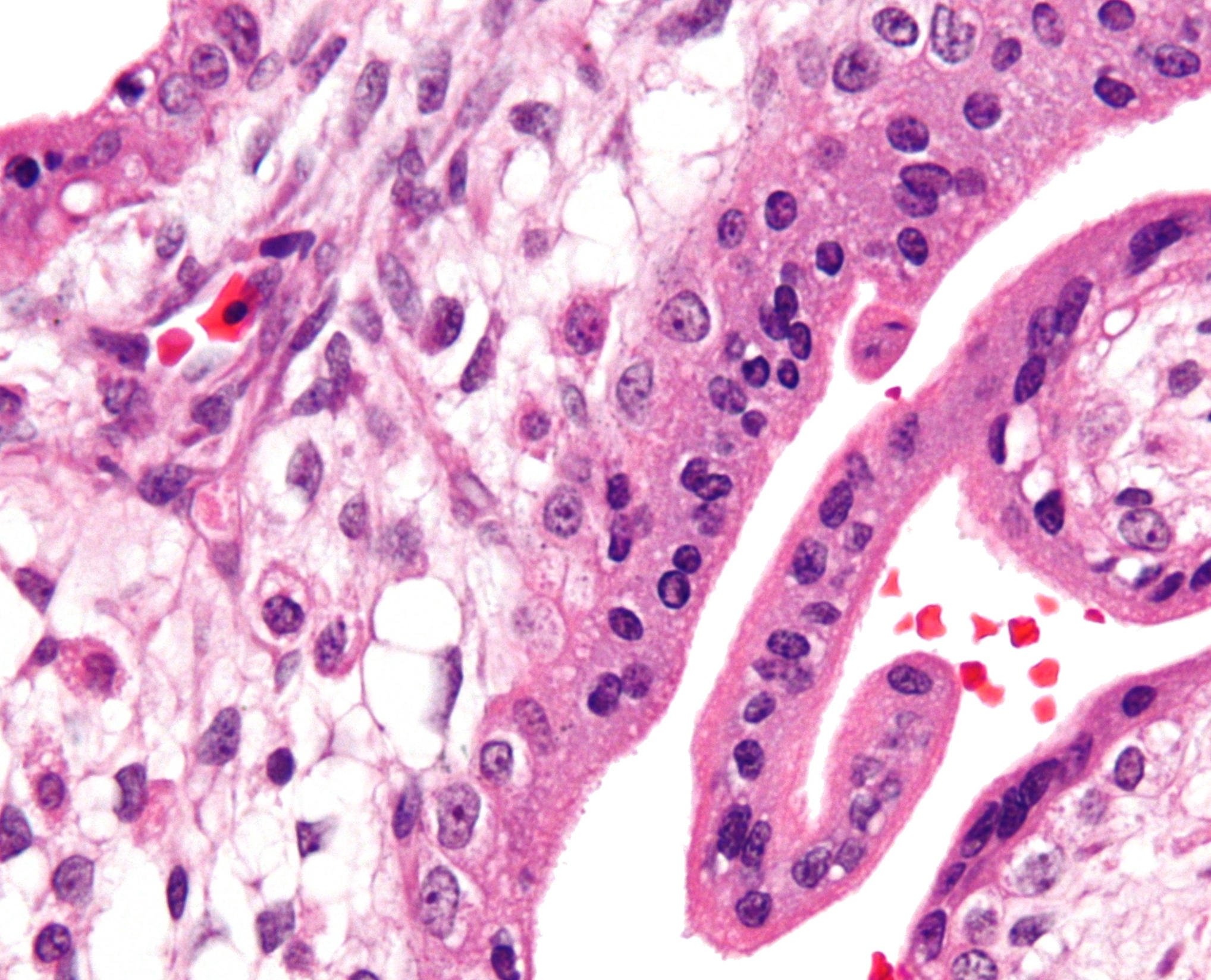 Micrograph showing chorionic villi of placenta with Hofbauer cells