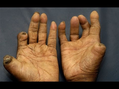 Leprosy damages fingers and toes