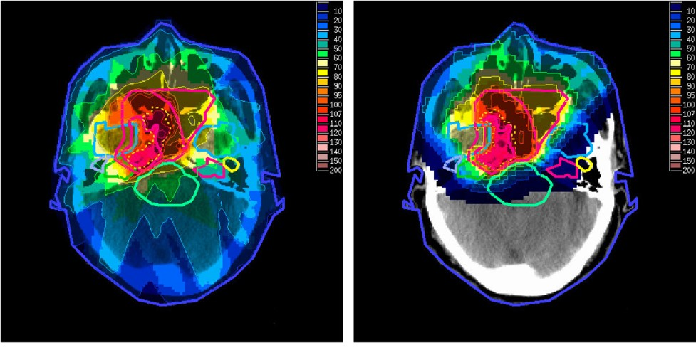 Study questions effectiveness of brain radiotherapy for lung cancer patients | Image: wikipedia.org