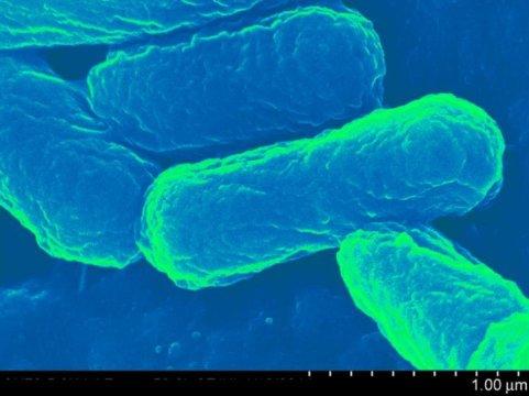 Escherichia coli / Credit: University at Buffalo