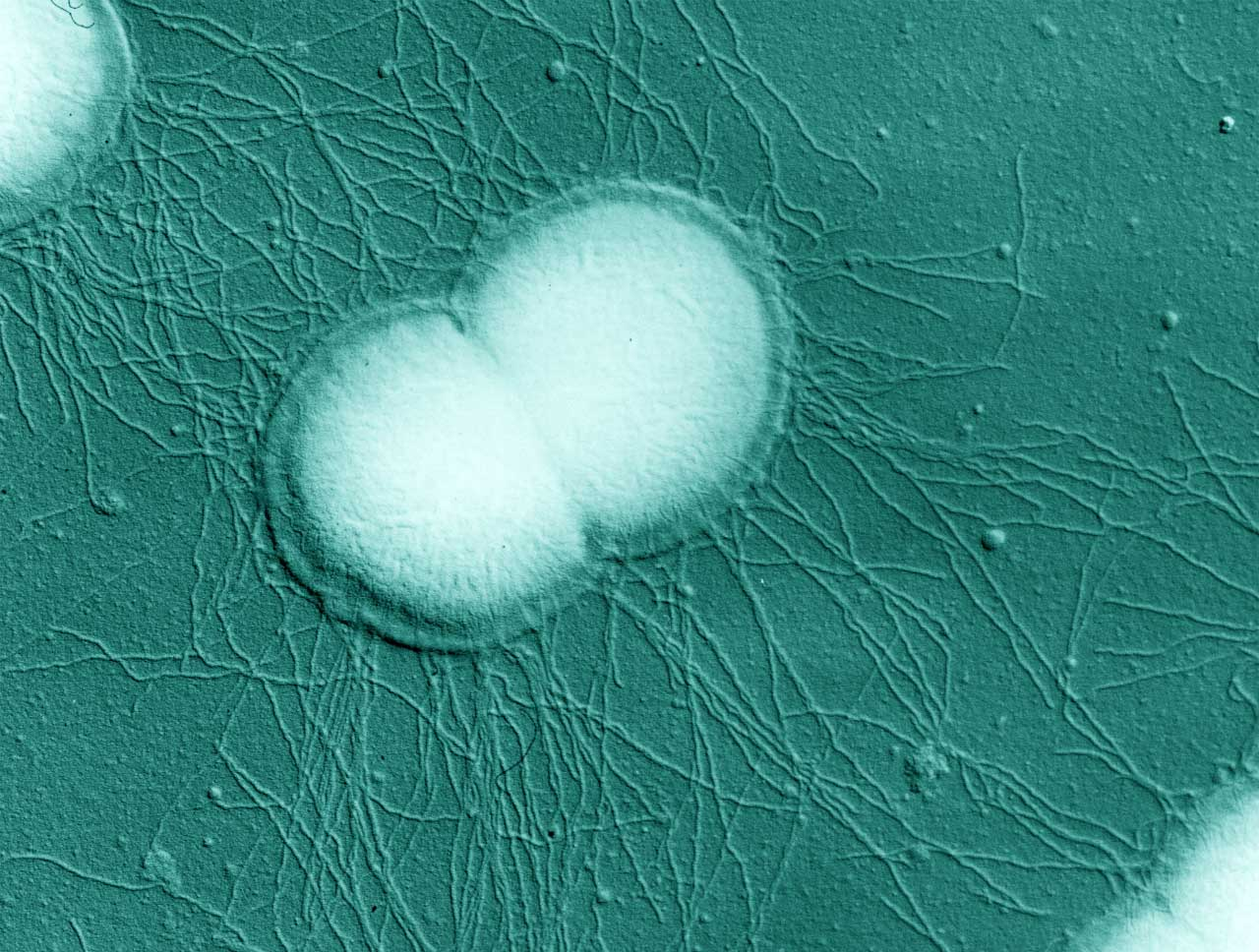 Electron micrograph of N. gonorrhoeae