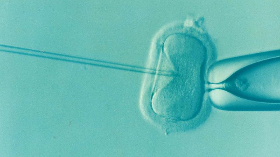 In vitro fertilization / Credit: Pixabay