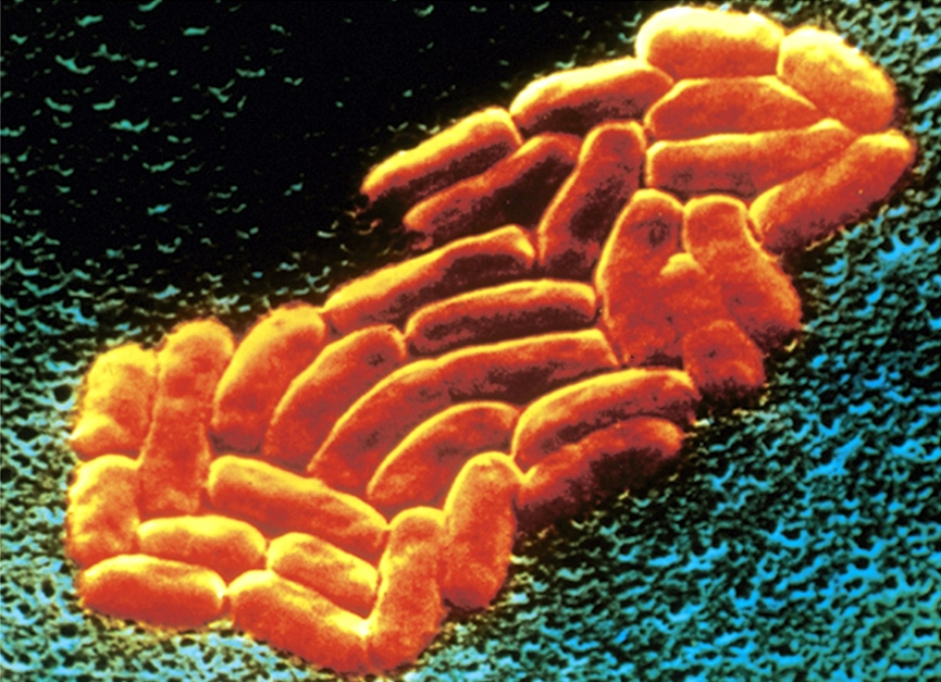 K. pneumoniae causes hospital-acquired infections.
