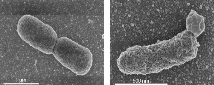 In the left panel: EM image of a normal dividing E. coli cell. Right panel: an engineered cell with high archaeal lipid production, showing lobular irregularities in the cell membrane. / Credit: Photo's University of Wageningen / Van der Oost laboratory
