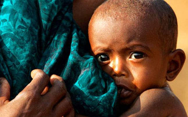 In 2017, roughly 151 million children younger than 5 were too short for their age due to malnutrition. Photo: India Today