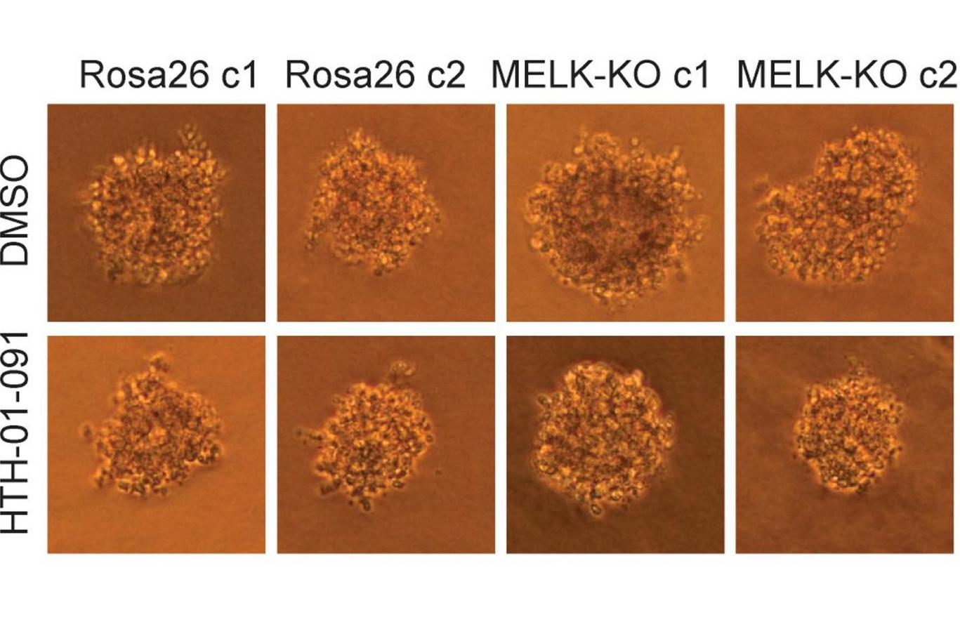 The growth of human colon cancer cells (raised in culture) is unaffected by the MELK gene. Top row: untreated cells; bottom row: cells treated with a MELK inhibitor drug. Left two columns, control cells; right two columns, cells in which MELK gene has been knocked out. CSHL researchers conclude that MELK is not involved in cancer proliferation.  / Credit: Sheltzer Lab, CSHL