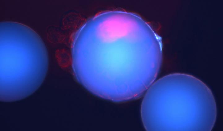 Researchers at the University of Texas at Dallas used 40,000 tiny plastic beads (blue), each coated with a unique chemical compound, to identify one compound that bound only to breast cancer stem cells (red).  / Credit: University of Texas at Dallas