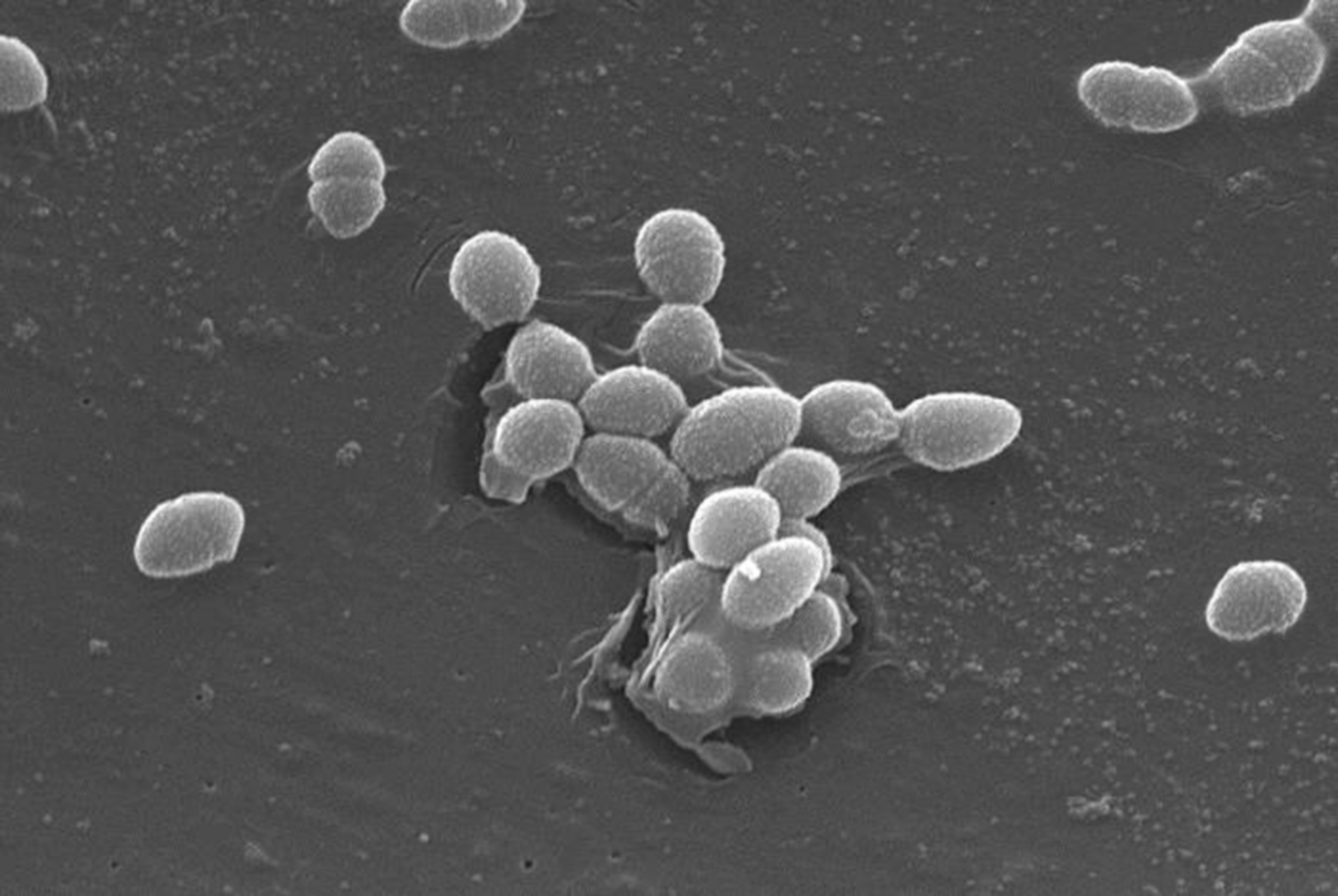 Scanning Electron Micrograph of Enterococcus faecalis, a bacterium that commonly lives in mammalian GI tracts. / Credit: Wikimedia/CDC/Janice Haney Carr