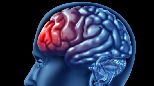 Up to 50% of people who have had a mild traumatic brain injury experience cognitive symptoms 1 year after the injury.