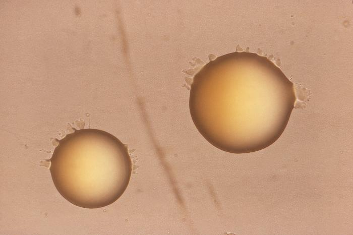 Two smooth, chromogenic colonies of Mycobacteria bacterial organisms / Credit: CDC/ Annie L. Vestal