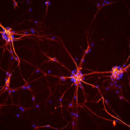 Neurons from a mouse spinal cord. Credit: NICHD/ S. Jeong