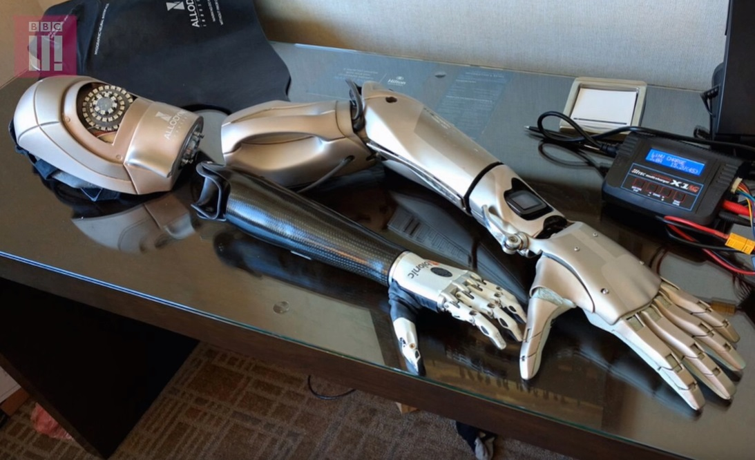 The new prosthetic arm Young can now enjoy.
