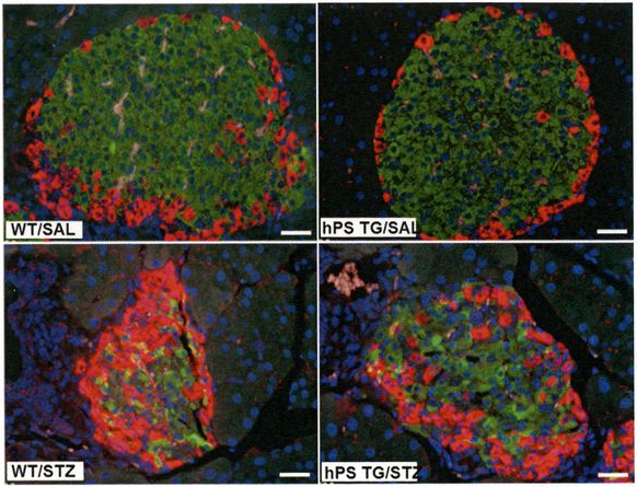 Mice altered genetically to make more protein S (hPS-TG) mice showed less apoptosis of islet ?-cells. As the insulin (green) stained area decreased, the area of glucagon (red) staining was significantly increased in the WT/ Streptozotocin (induces beta cell death) group compared with the WT/Saline Control group but remained unchanged in the hPS TG/ Streptozotocin compared with the saline-treated group / Credit: Diabetes