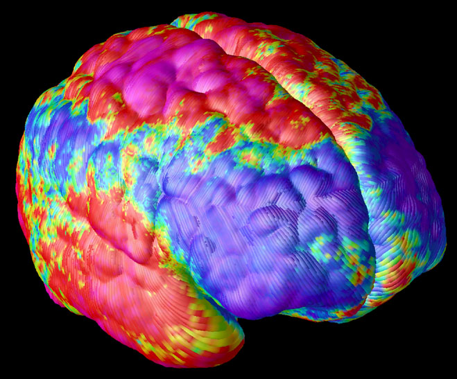 False color image of a Schizophrenic brain. / Credit: NIMH