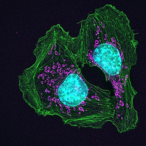This is a skin cancer cell. / Credit: Knight Cancer Institute