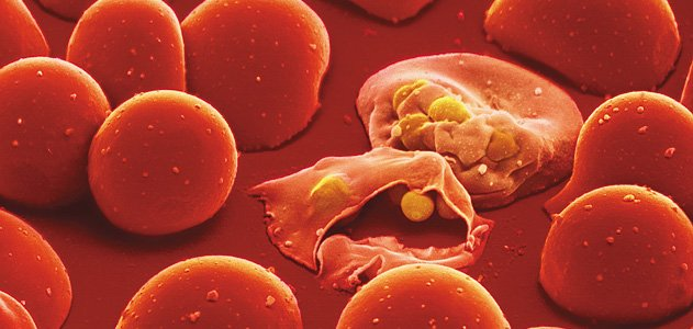 Malaria parasites infect and lyse red blood cells.