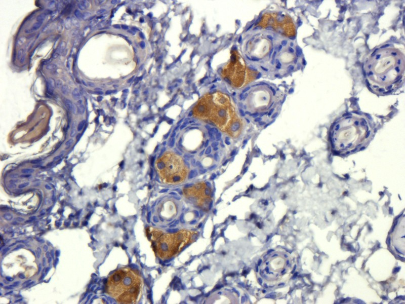 Immunohistochemical staining of paraffin embedded mouse skin tissue using anti-TGF beta 1. Source: Biorbyt