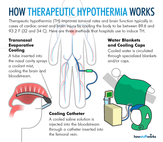 therapeutic hypothermia for cardiac arrest patients Arctic sun medical device the use of hypothermia on dogs after cardiac arrest demonstrated with therapeutic hypothermia for patients resuscitated.