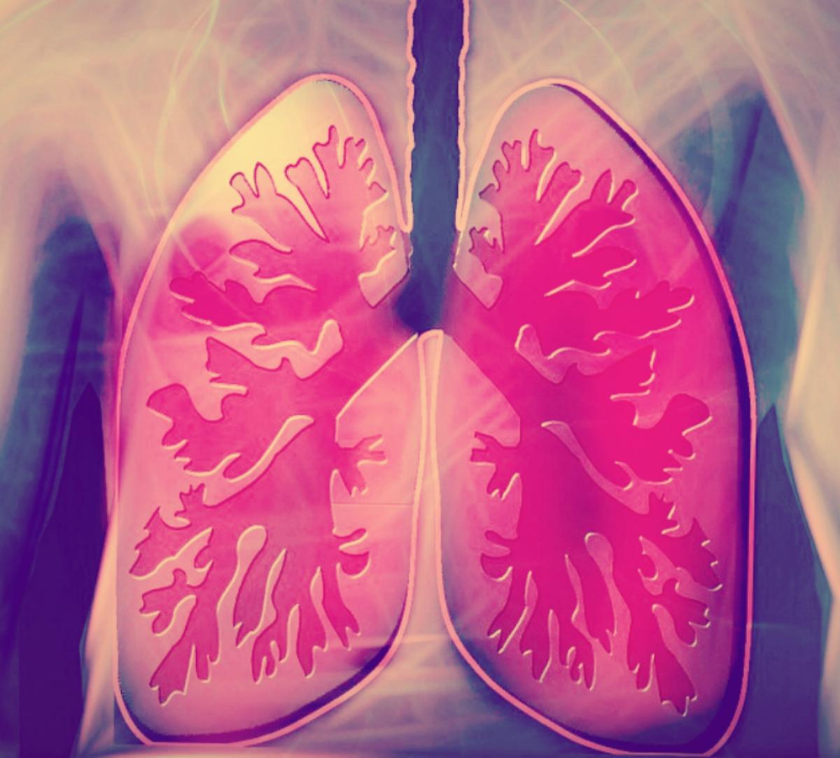 Lung illustration, credit: public domain
