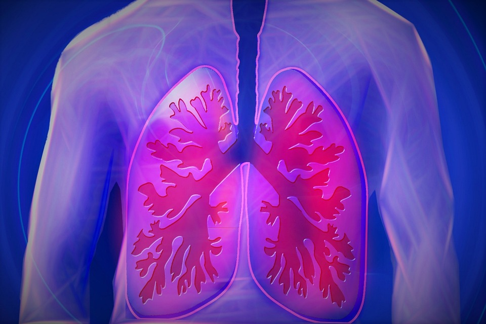 Acute lung injury kills 30 to 40 percent of those affected.