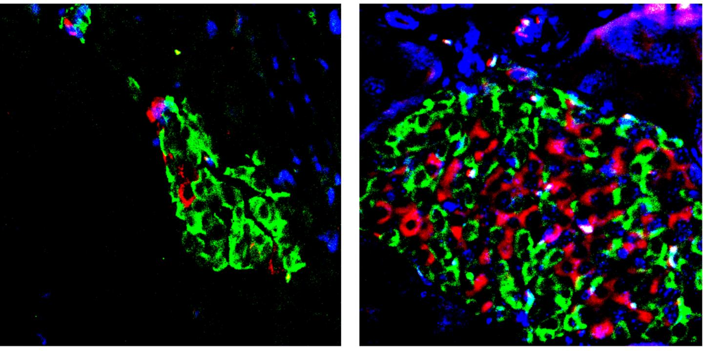 Enhanced activation of vitamin D curbs type 2 diabetes progression in animal models. Left: damaged insulin positive B cells (red) in a diabetic mouse pancreas. Right: B cells (red) were protected in a diabetic mouse pancreas treated with a combination of a vitamin D activator and BRD9 inhibitor. / Credit: Salk Institute