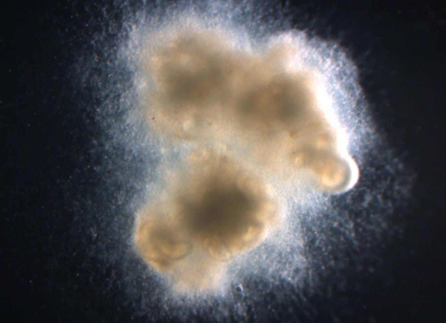 Human intestinal organoids with enteric (intestinal) nerves generated in a petri dish using human pluripotent stem cells, which can become any cell type in the body. / Credit: Cincinnati Children's