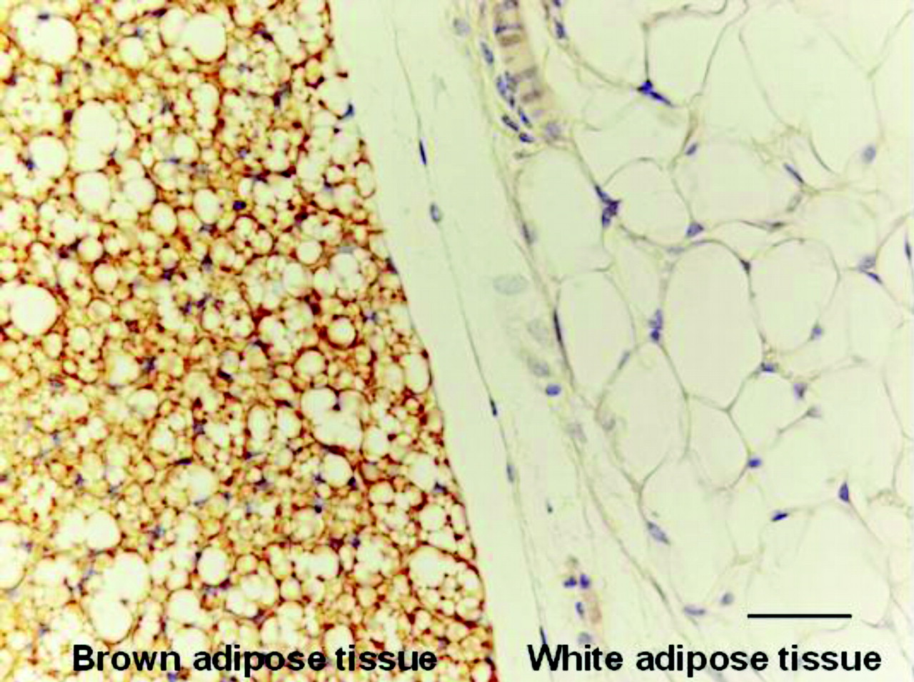 The difference between brown and white fat cells. Credit: Susan Ardizzoni.