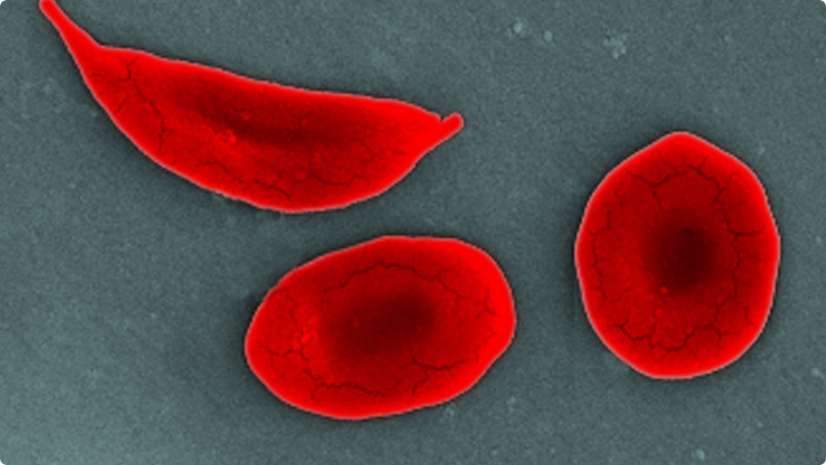 A sickle shaped red blood cell (top left) caused by SCD.