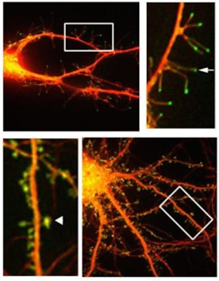 This is a fluorescent microphotograph of neurons that shows filapodia extending out from dendrite.