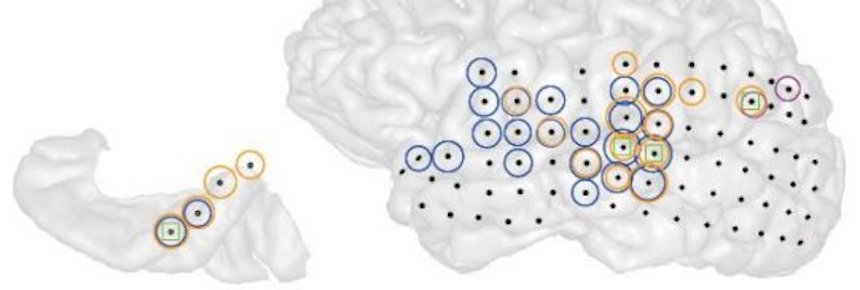3-D image of the left hemisphere of a patient with tinnitus (right). Black dots indicate all the sites recorded from. Colored circles indicate electrodes at which the strength of ongoing brain activity correlated with the current strength of tinnitus perceived by the patient. Different colors indicate different frequencies of brain activity (blue = low, magenta = middle, orange = high).