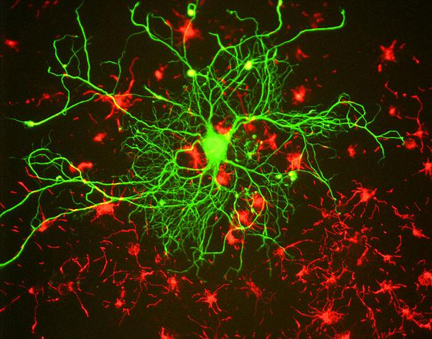 Mutation triggers ALS and FTD brain damage.